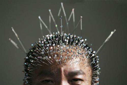 Acupuncture Intro Pic